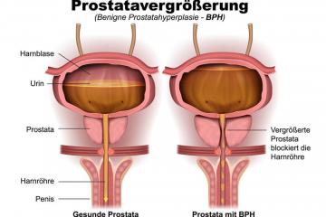 Gutartige Prostatavergrößerung - Längst nicht immer eine Erkrankung